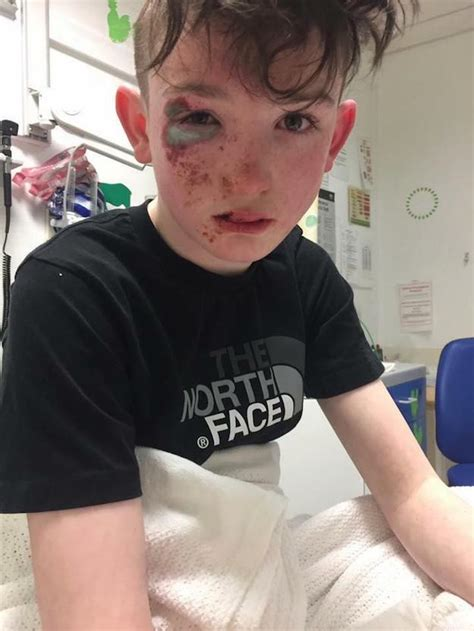 what to get a 12 year old boy for christmas 12 year boys who fooled and claimed they were attacked with acid found to be lying