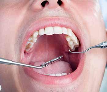 dental white fillings london benefits  white fillings