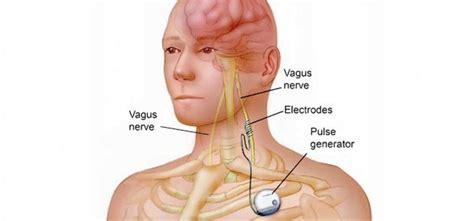 dolore lato destro testa nervo vago infiammato cosa fare vivo di benessere