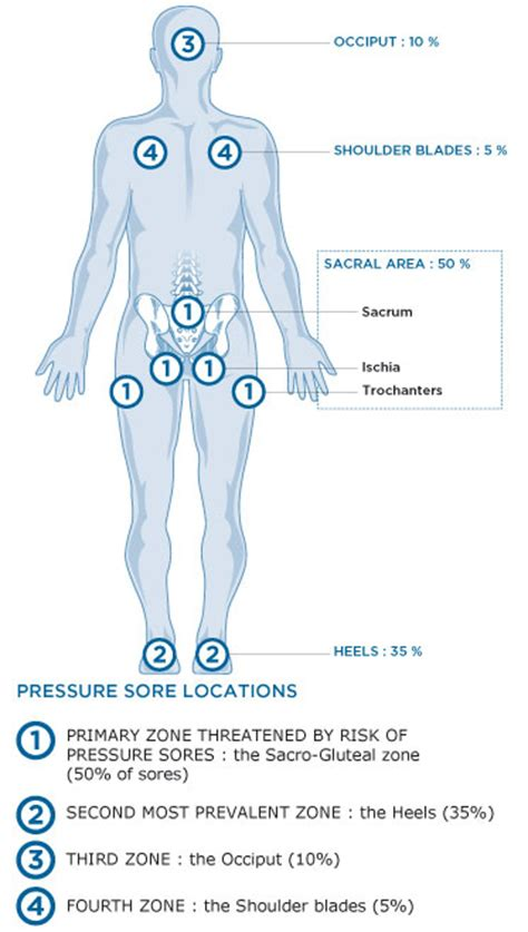 pressure ulcer locations diagram how to prevent bed sores bed sore bed sore holding