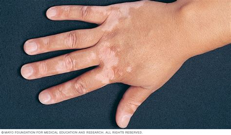 skin disease loss of pigment with hair loss vitiligo symptoms and causes mayo clinic