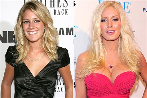Heidi Montag Plastic Surgery by Plastic Surgery Before And After
