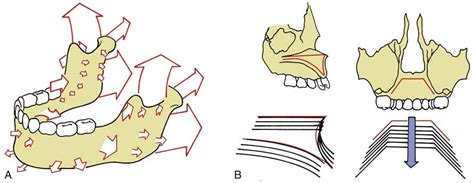 pattern classification for finding facial growth abnormalities 26 correction of dentofacial deformities pocket dentistry