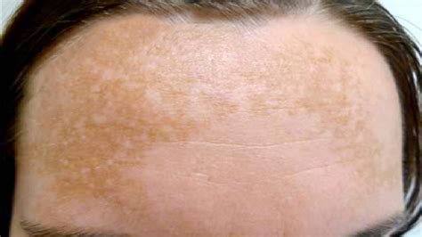 Melasma 5 In 1 concept cosmetic medicine what the heck are these patches that just appeared on my