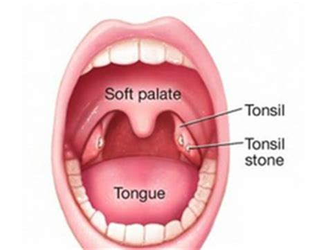 lump in back of throat when swallowing throat tonsils gallery