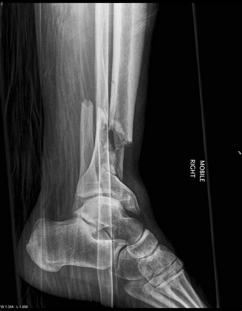 Tibial Plafond by Pilon Fractures