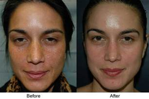 How To Remove Acne Scars Fast At Home by Vi Peel Phoenix Scottsdale Az At Suddenly Slimmer Spa