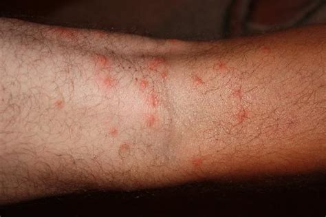 small bed bug bites small bed bug bites 28 images what do bed bug bites