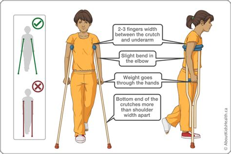 proper picture height crutches how to use aboutkidshealth
