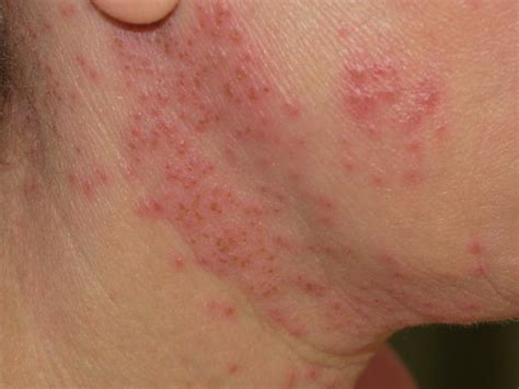 Mat Herpes Pictures by Eczema Herpeticum Symptoms Diagnosis And Treatment