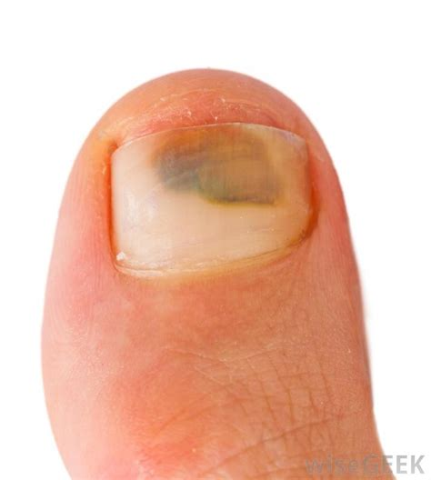 bruised nail bed how do i treat a bruised toenail with pictures