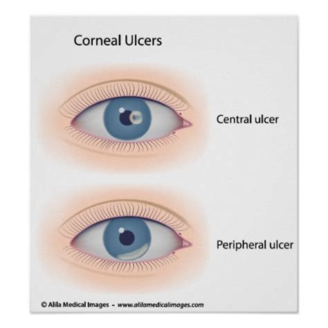 eye ulcer this monsoon protect your from dangerous infections lifestyle fashion and