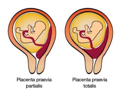 plazenta praevia totalis wann kaiserschnitt placenta praevia netdoktor at