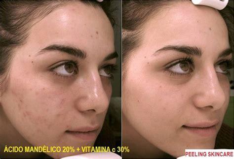Brightening Dr Widyarini Skincare 1 peeling combinado mand 233 lico vitamina c peeling skin care
