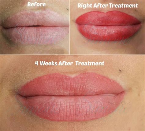 permanent lip color semi permanent make up gt prices from just 163 199 per area