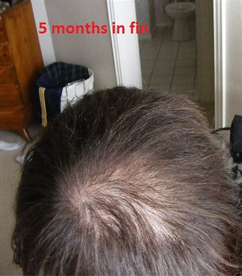 rogaine success stories in men rogaine success stories in minoxidil for beard growth