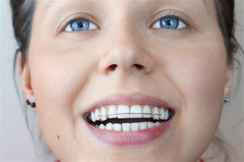 apparecchi dentali mobili apparecchi dentali ortodonzia dott ssa paoloni in perugia