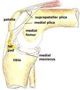 medial plica knee