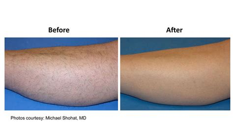 lhe hair removal in portland oregon clinic snambinnam at the mall ngamwongwan in nonthaburi