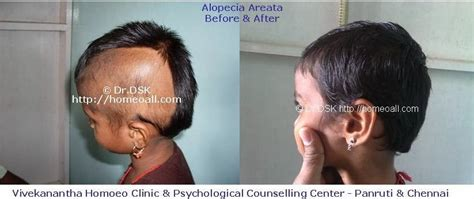 female pattern hair loss and homeopathy vivekanantha homeo clinic psychological counseling
