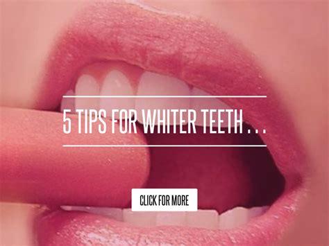 5 Tips For Whiter Teeth by 5 Tips For Whiter Teeth