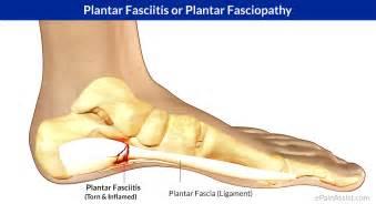 plantar fasciitis or plantar fasciopathy or jogger s heel
