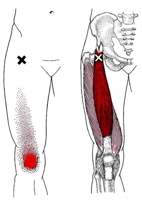 in the pattern of attachment quizlet rectus femoris trigger point patterns and pain shiatsu