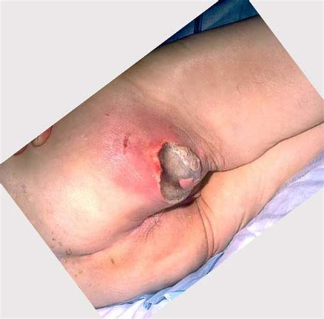 treatment for bed sores on buttocks bedsores pictures pictures photos