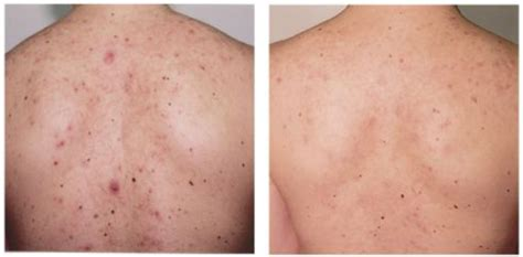 pimples on back 12 simple remedies to get rid of back acne fast