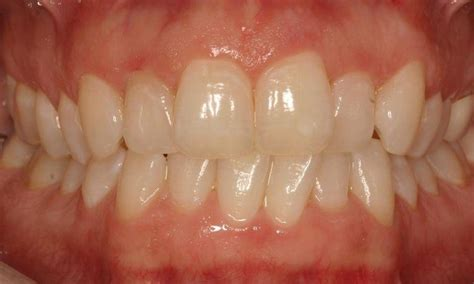 ruggless dentals smile gallery invisalign