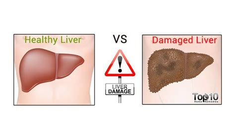 early signs  liver damage   strengthen