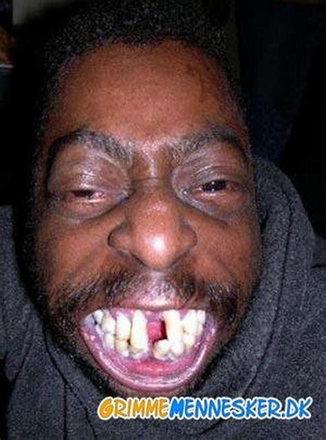 bad teeth anorak bad teeth