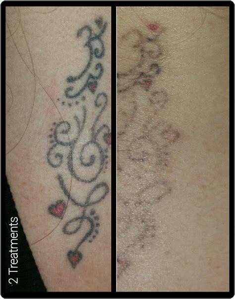 not forever clinics tattoo and body art removal specialists