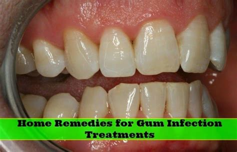 home remedies for gum infection treatments