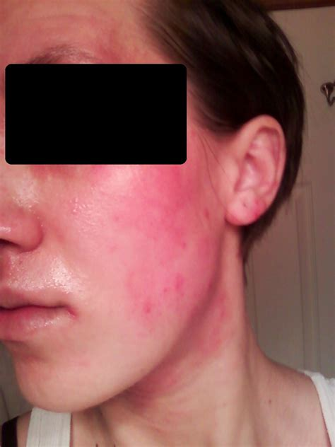 tsw and eczema in pictures eczemaexcellence
