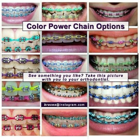 color of power color power chains braceface in 2018