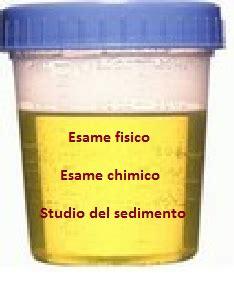 esame urine sedimento esame delle urine spiega esami
