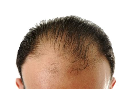 body hair loss in men over 50 scientists discover how to regenerate hair and skin skin