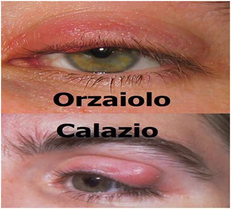 calazio interno l orzaiolo e il calazio cause sintomi cura e differenze