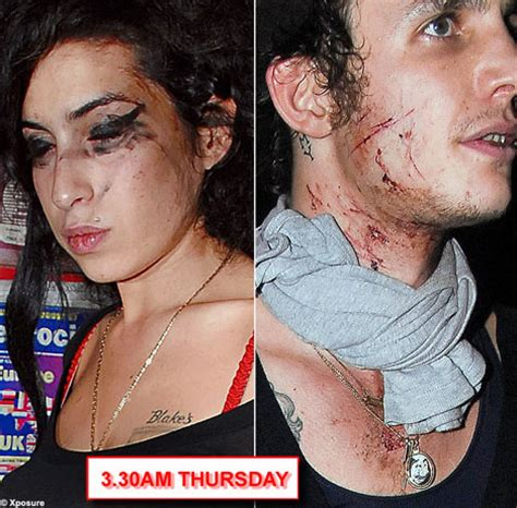 bloodied  bruised amy winehouse stands  husband