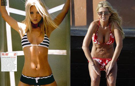Scary Surgery On Tara Reids 2 by Chatter Busy Tara Plastic Surgery Now Isn T That