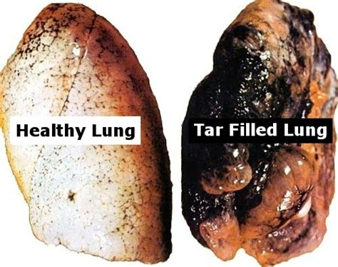 Does Tabacco Affect Thc Detox by This Is What Marijuana Does To Your Lungs