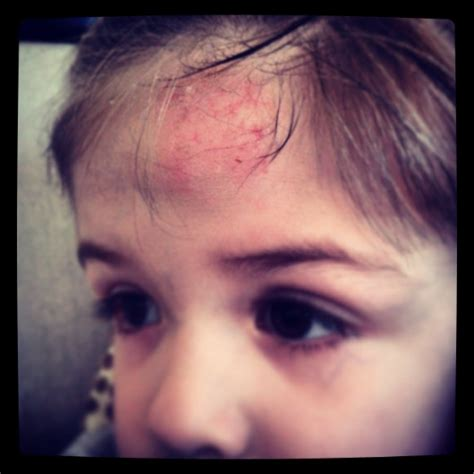 mal di testa frontale persistente traumi cranici instamamme