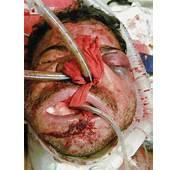 Facial Trauma Causes Symptoms Treatment
