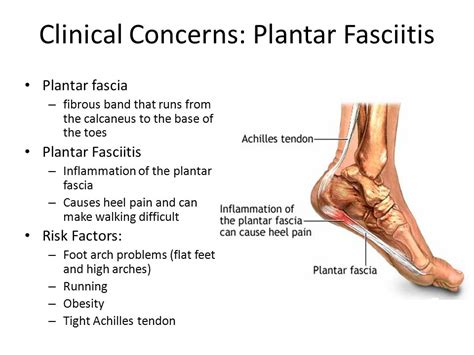 Planters Foot Symptoms by Knee Tibiofemoral Joint And Foot Ppt