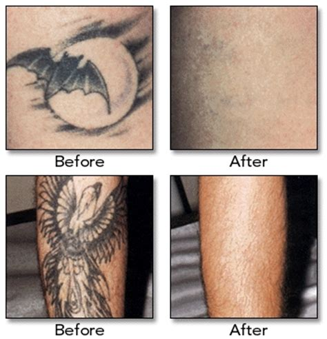 costs of tattoo removal fact sheet plastic surgery prices for