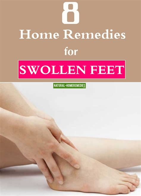 8 home remedies for swollen home