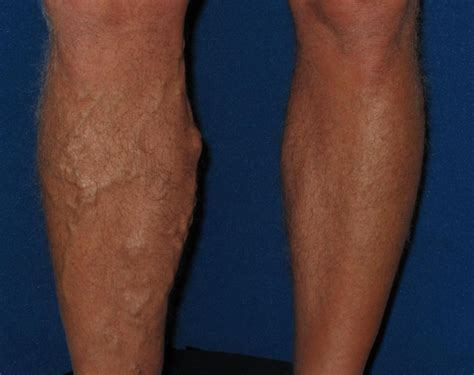 spider veins on the legs treatments varicose veins veinspecialistsofarizona