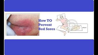 How To Prevent Bed Sores how to prevent bed sores pressure ulcer prevention how