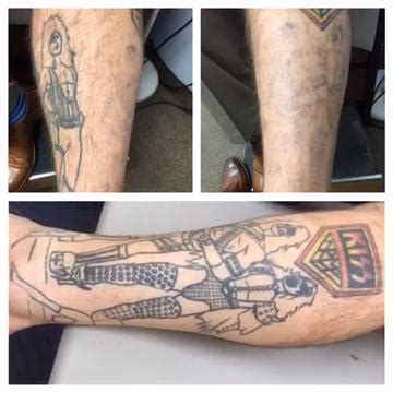 laser tattoo removal cleveland ohio vladlen md reviews before and after photos answers